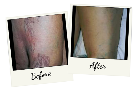 laser-vein-therapy-2