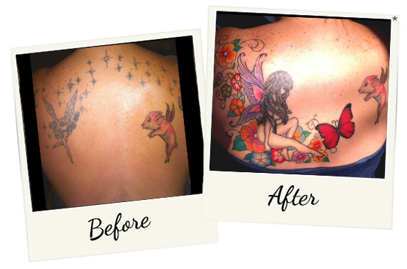 tatoo-removal-10