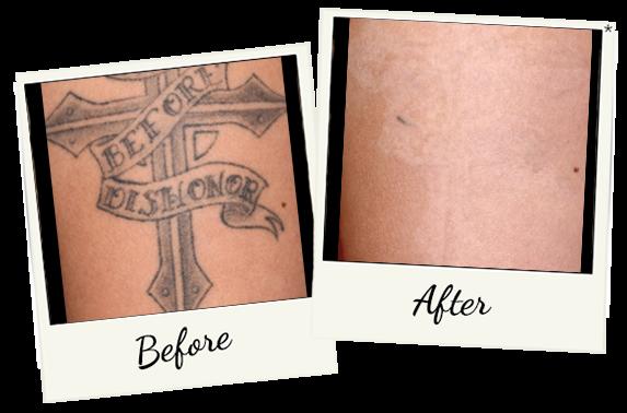 tatoo-removal-4