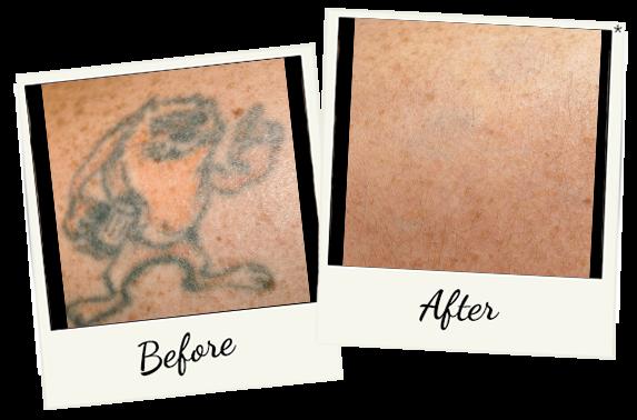 tatoo-removal-5