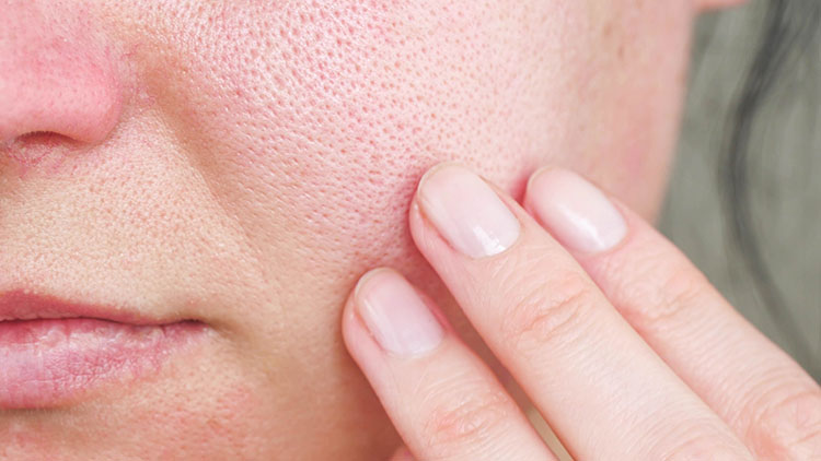 Enlarged pores | Riopelle Cosmetic Surgery and Laser Center