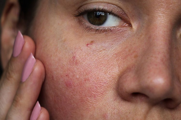 Causes of Uneven Skin | Riopelle Cosmetic Surgery and Laser Center